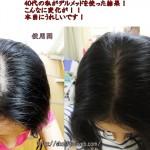 デルメッド女性育毛剤の1か月使い続けた結果、はっきりと効果が!